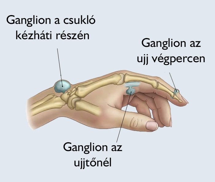 vastagbélrák ganglion kiújulása