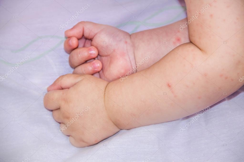 baba arc dermatitis