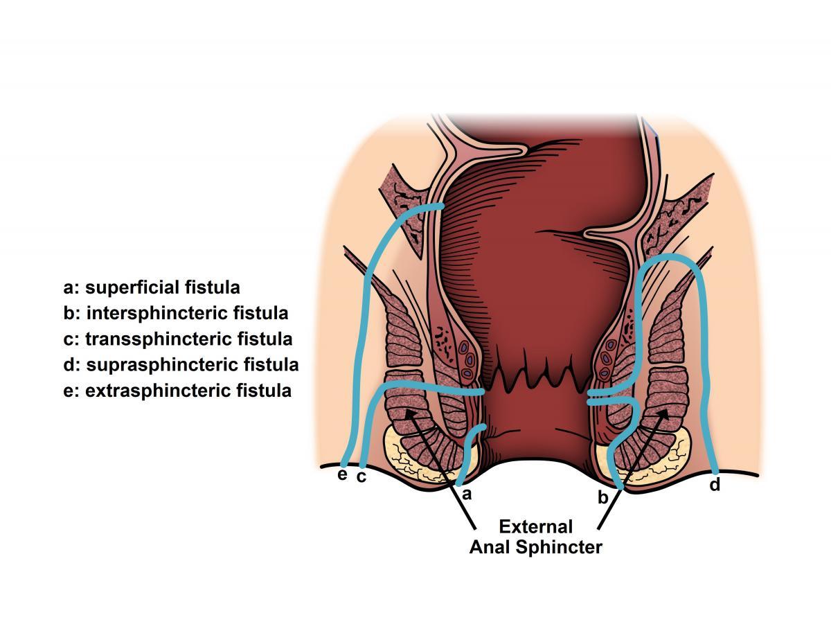 Végbélnyílás-sipoly (fistula ani) lézeres műtéti megoldása