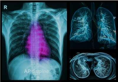 a tüdőben található szarkóma rák)