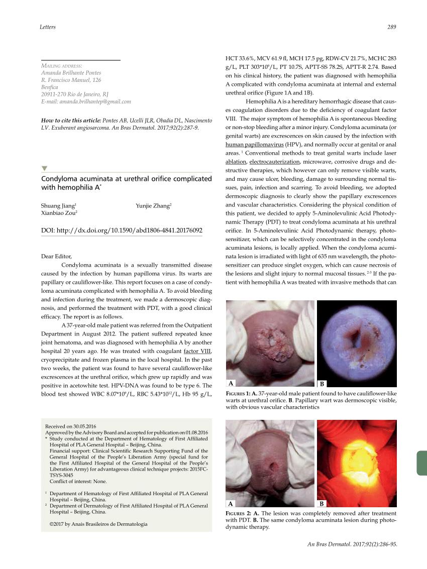 ben a condyloma mikoplazmózisa