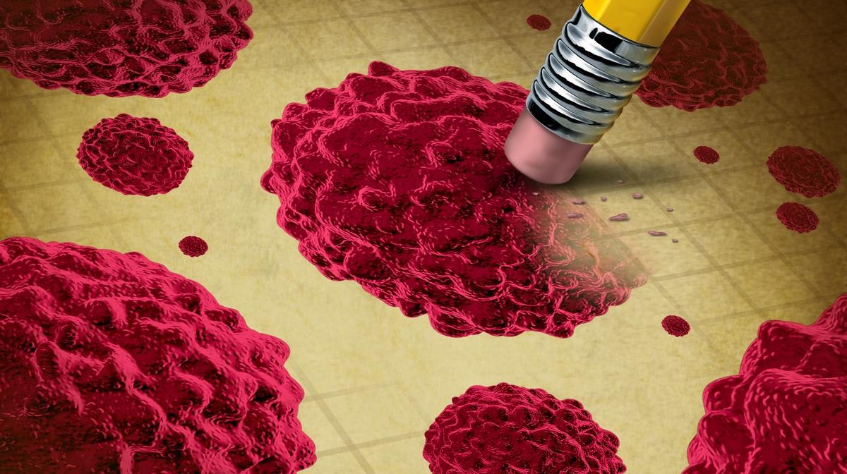 hpv vírus és végbélrák