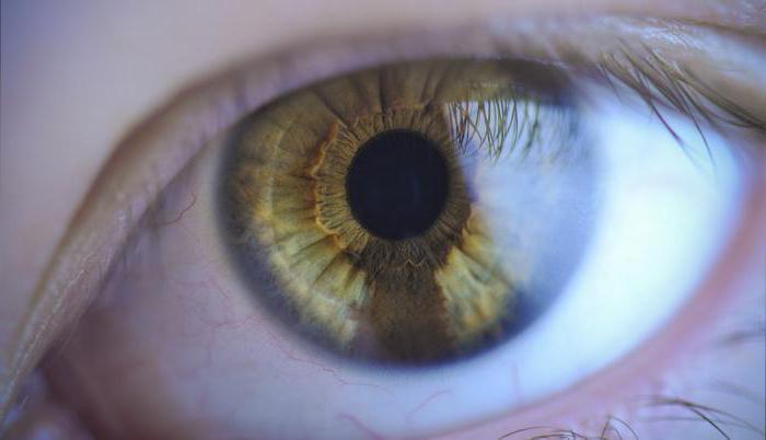papillómák a szemhéjon, mint kezelni enterobiosis kód