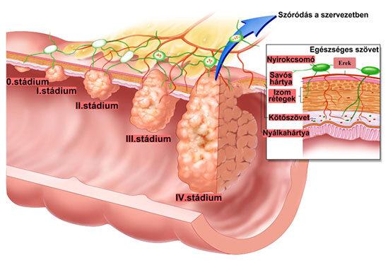 milyen tüneteket okoz a vastagbélrák)