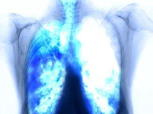 rák legagresszívebb típusa