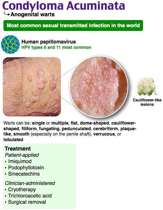 condyloma acuminatum rák kockázata)