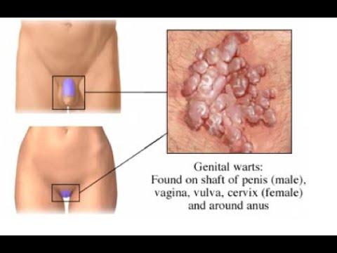 condyloma valtrex
