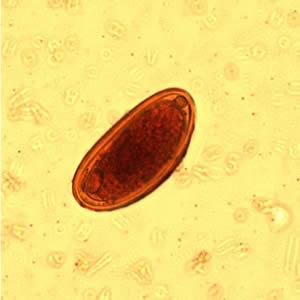Dpdx paraziták, Enterobius vermicularis (Gombféreg) | Körinfo