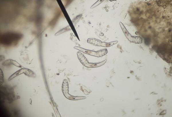 A leggyakoribb élősködők a testünkben, A paraziták kezelése a fején