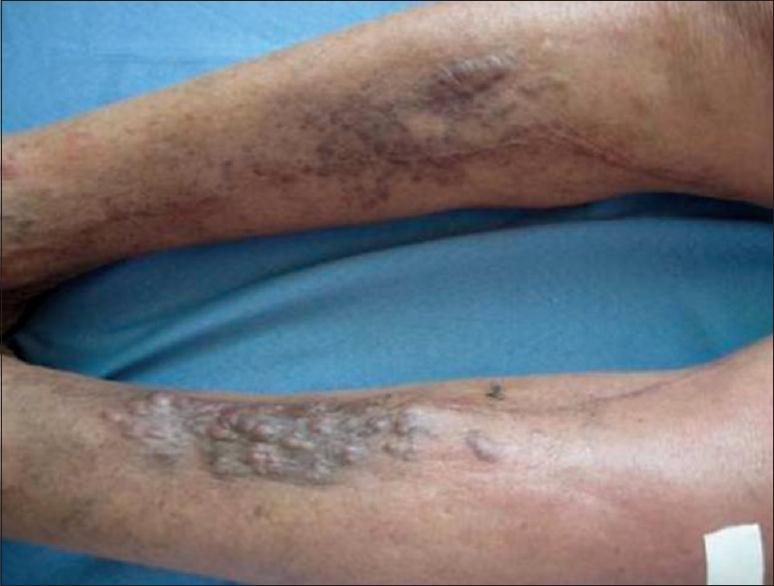 a férgek súlyos kezelése papilloma vírus formája