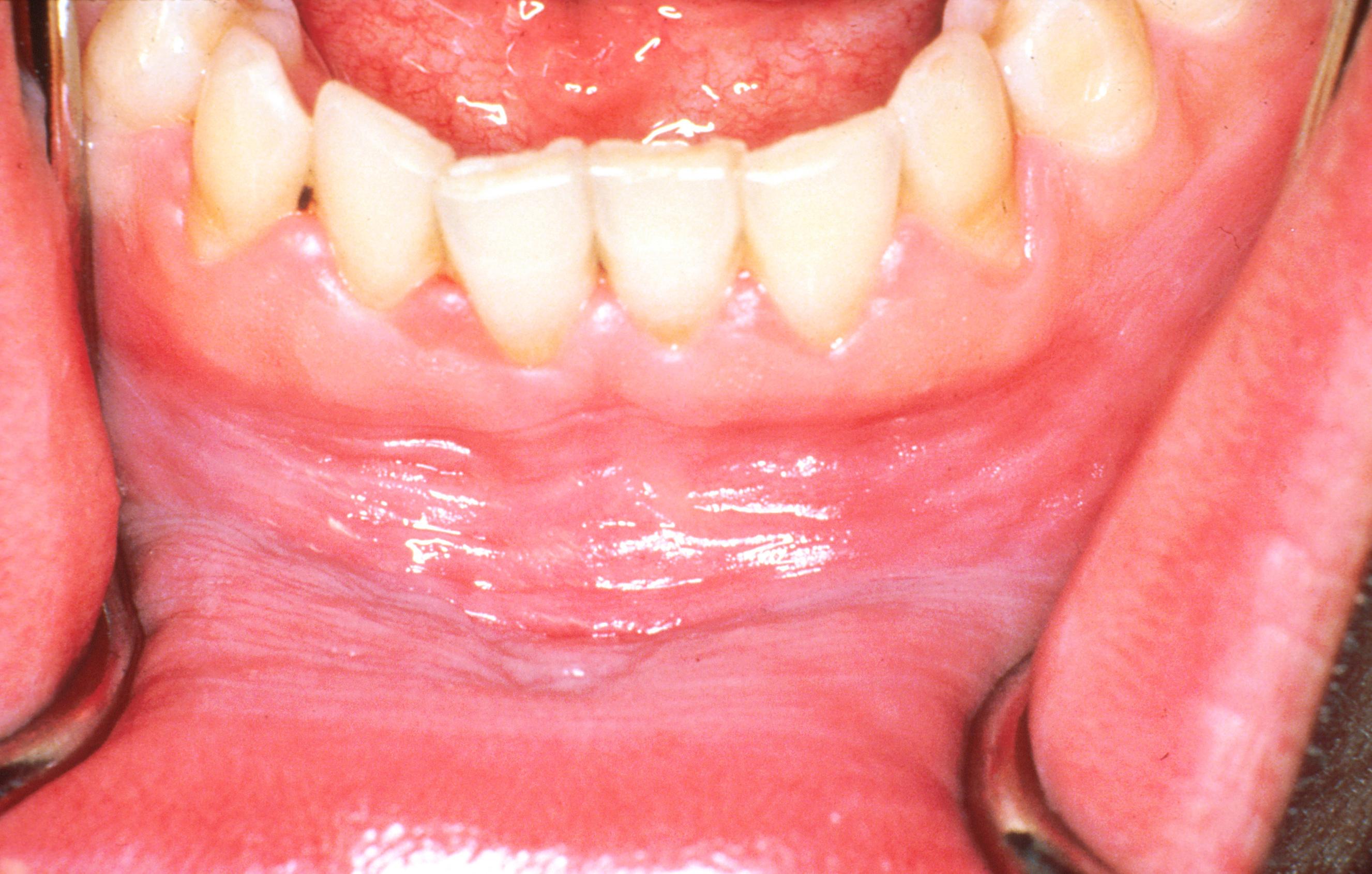 az íny szájüregi rákja