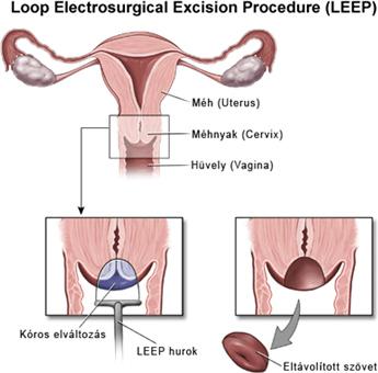 Tájékoztató az anyajegyek, szemölcsök és fibrómák eltávolításáról