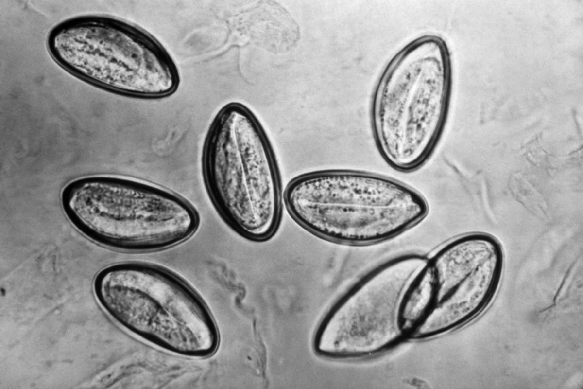 enterobius vermicularis népnév)