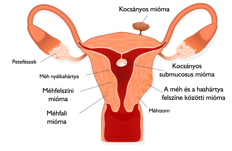 hasi rák laparoszkópia)
