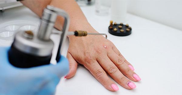 parazita kezelési tapasztalat maana ya virusi