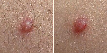 genitális herpesz papilloma