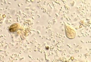 Giardia cdc treatment