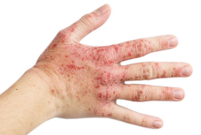 gyógyító sebek az ujjak között