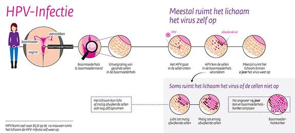 hpv vírus rivm