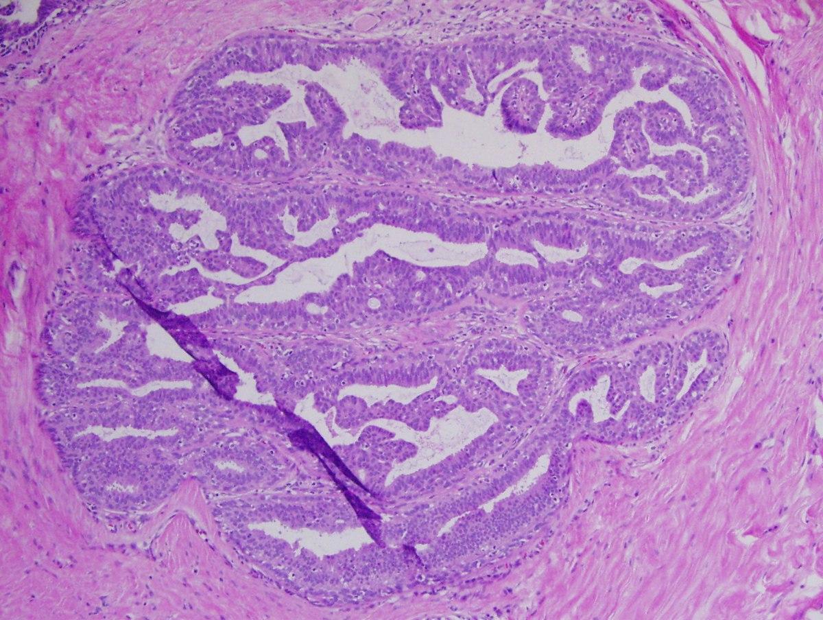 intraductalis papilloma és laktáció