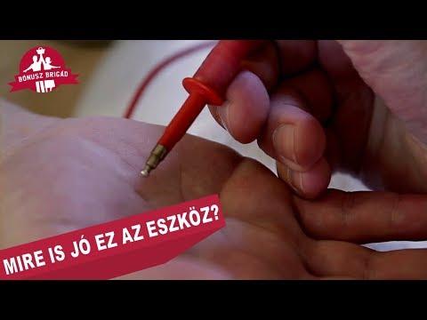 liberális parazitaellenes komplex hasi rák cie 10