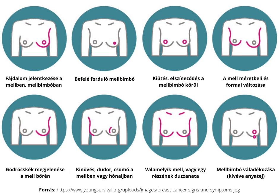 mellrák onkológia