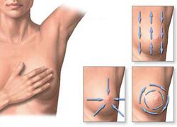 női mellbimbó rák