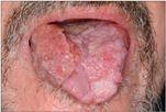 nyelvi papilloma okozza