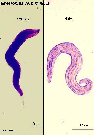 Pinworms kezelése: tünetek és gyógyszerek - Helminth pinworm kezelés Pinworm flatworm