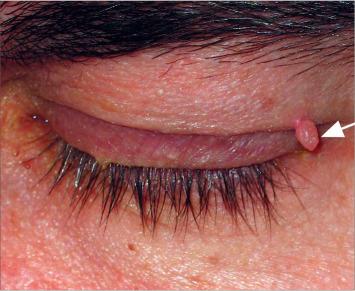 humán papillomavírus ursachen diffúz trachealis papillomatosis
