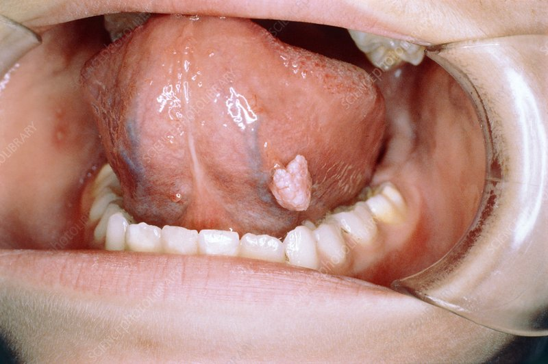 papilloma sub lingual