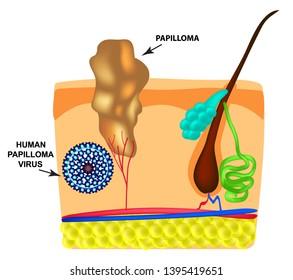 papilloma vírus a hólyagban