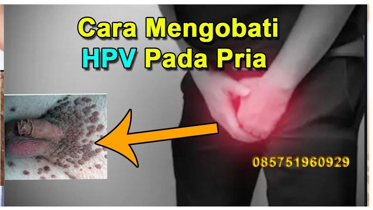 Squamous cell papilloma urinary bladder, Urinary bladder papilloma histology.
