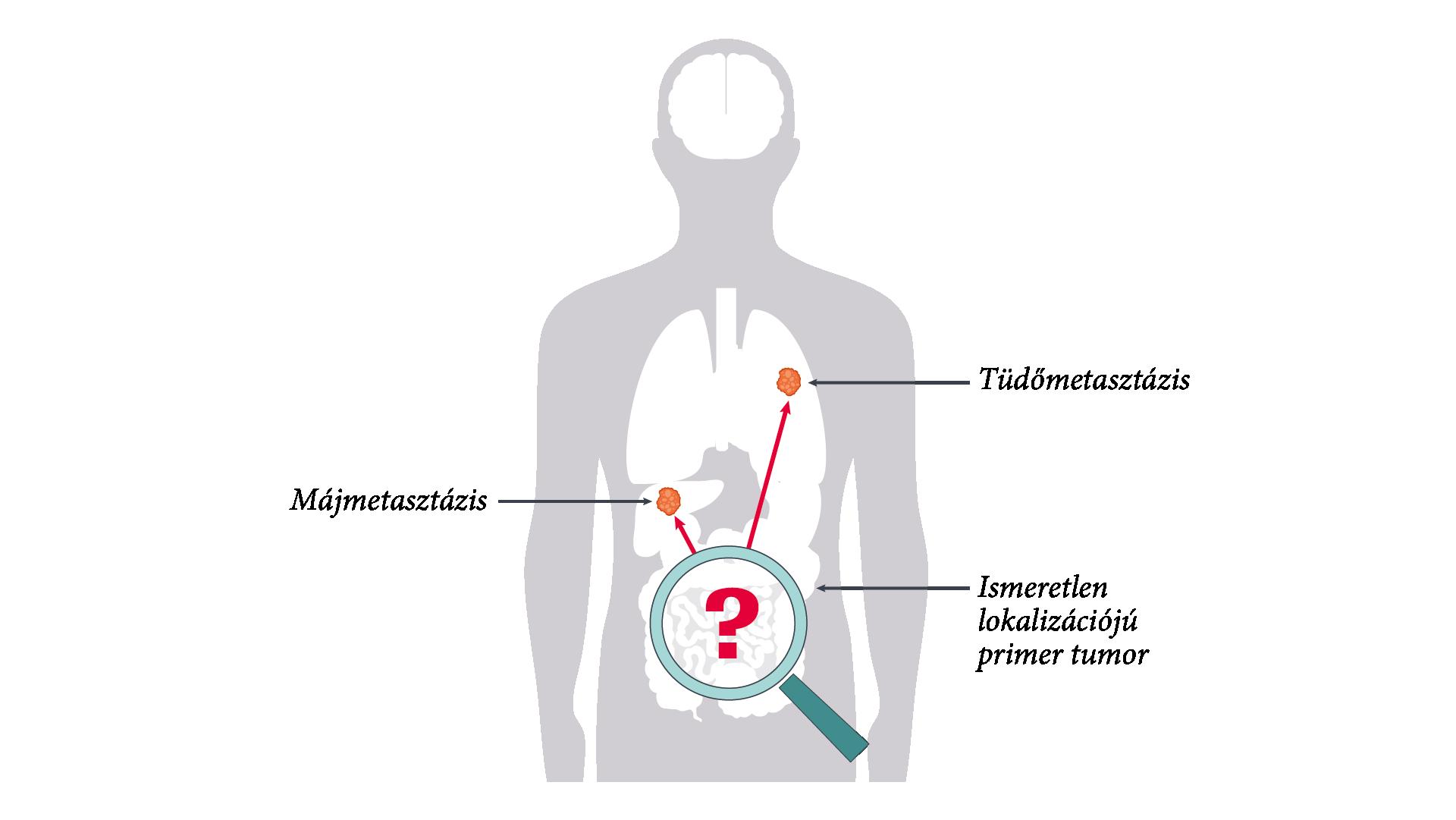 Petefészek daganatok | Hungarian Oncology Network - bestgumi.hu