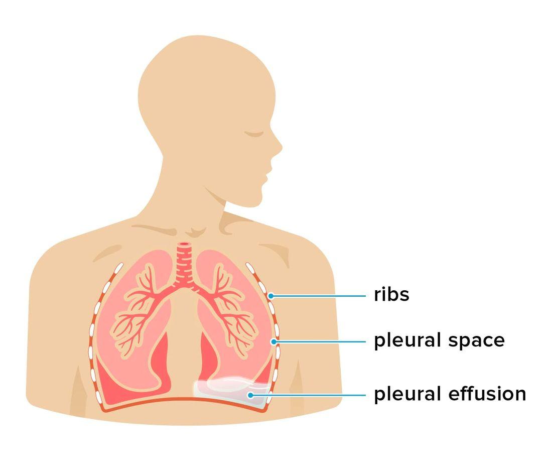 pleurális rákot okoz
