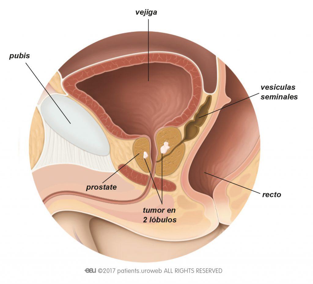 helmint leukocita fertőzés