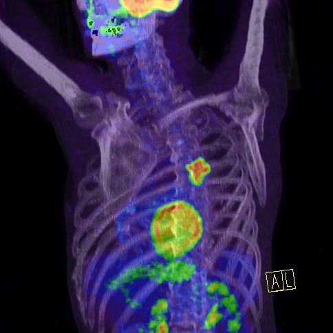rákos hasi ultrahang