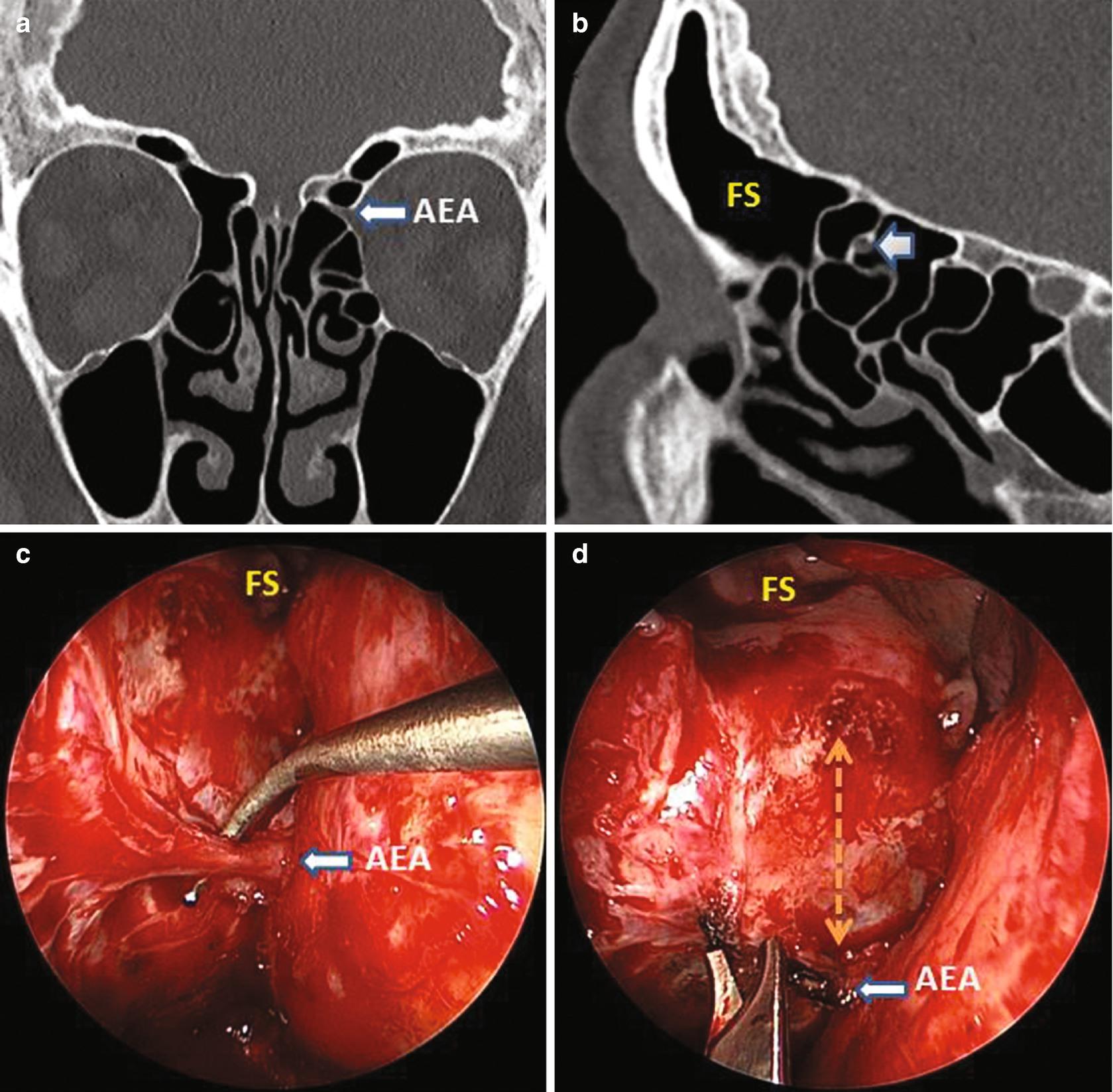 sinus papilloma b3