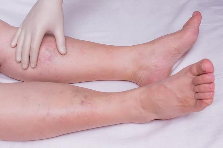 szabad fekély a lábujjak között mi okozza a papillómát a torokban