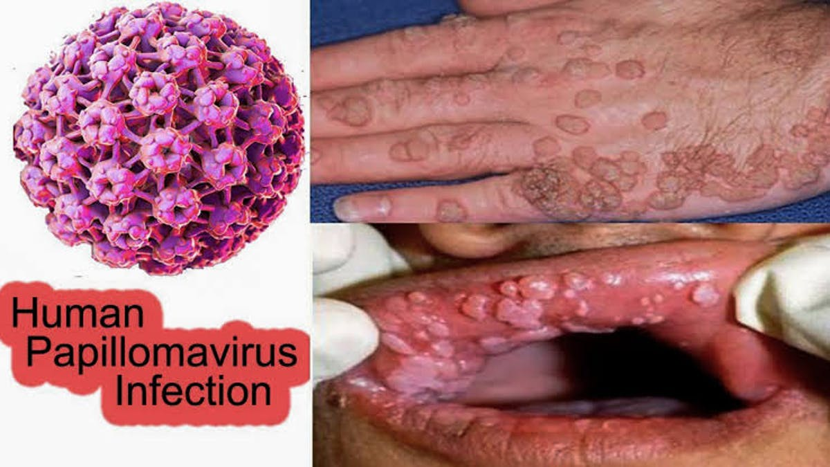 a hpv papilloma vírus