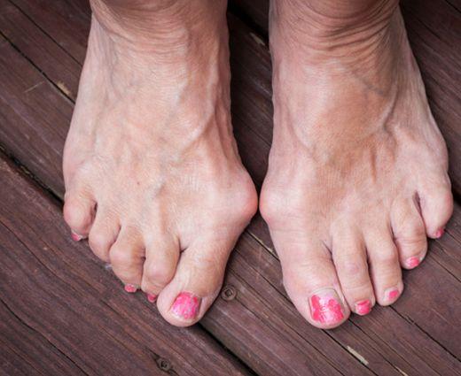 szabad fekély a lábujjak között