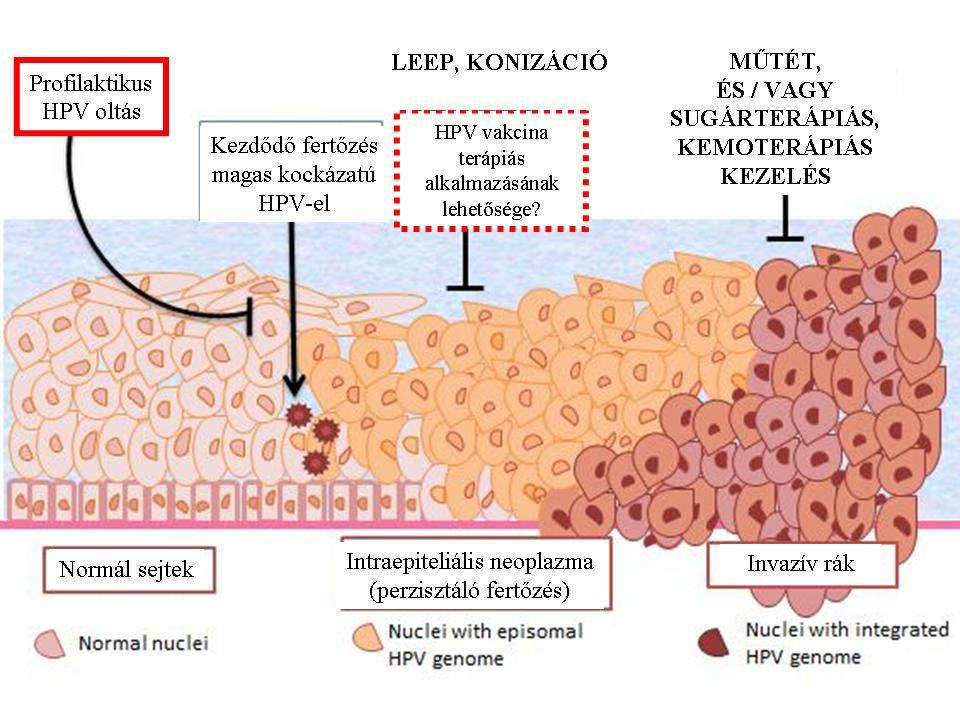 hpv vírus rákos sejtek)