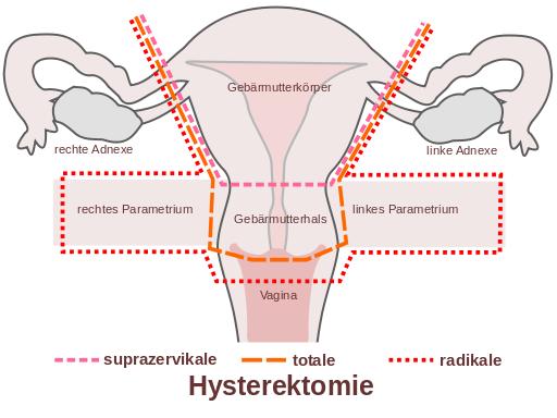 hpv vírus gebarmutter)