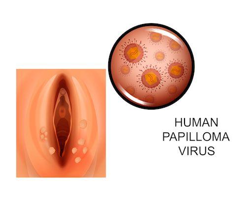 priznaky hpv vírus