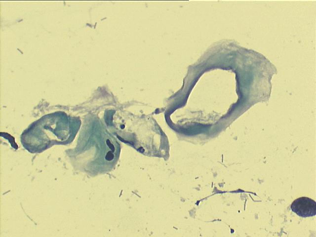 a nyak lapos condyloma okozza
