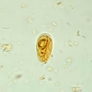 a giardiasis cdc életciklusa