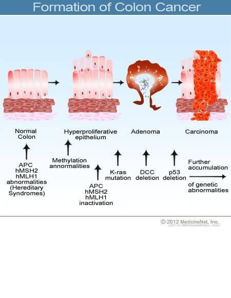 a peritoneális rák túlélése)