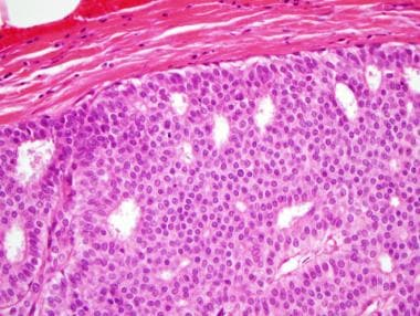 papilloma dcis-sel)