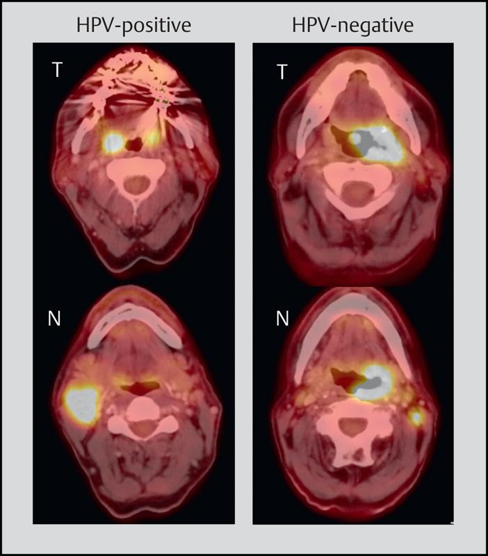 papillomavírus vulva kezelés gyermekeiknek vannak barna férgeik?