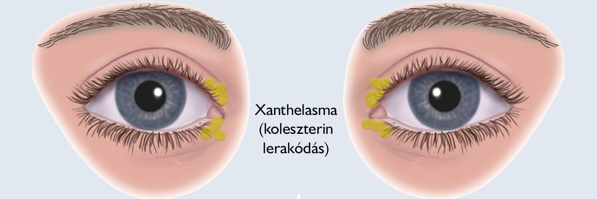 Így irtható ki a szemölcs - EgészségKalauz